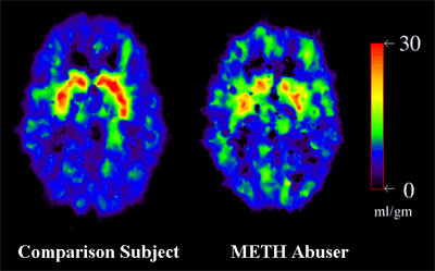 PET Scans showing normal brain and METH Abuser brain - METH abuser brain shows less activity in normal regions and slightly increased activity in areas that are less active in the normal brain