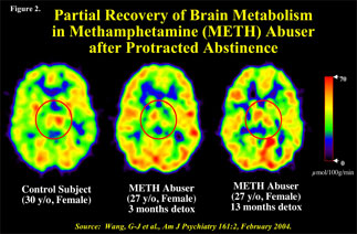 brain scans showing change in brain activity after extended abstinence from methamphetamine use - in text