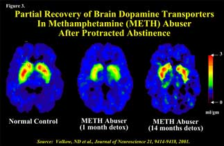additional brain scans showing some recovery from methamphetamine abuse - in text