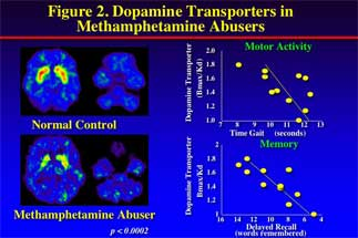 brain scans showing change in brain activity in methamphetamine abusers - in text
