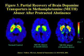 brain scans showing partial recovery in brain activity in methamphetamine abusers after protracted abstinence - in text