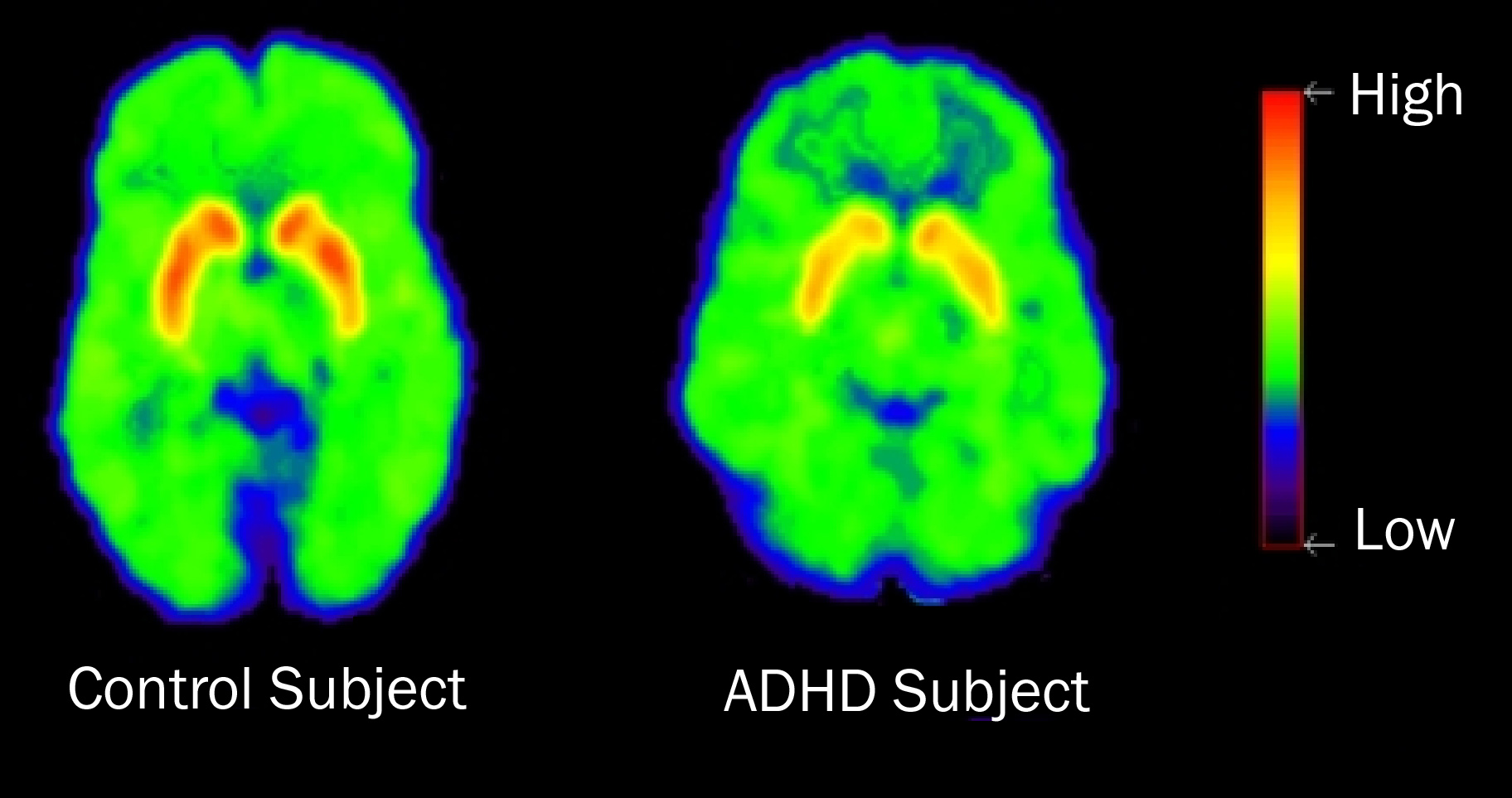 PET scan showing brain activity for someone with ADHD