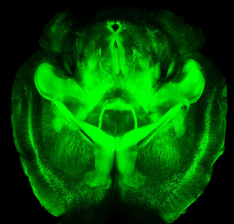 Mouse brain imaged using CLARITY.   Howard Hughes Medical Institute/Stanford University