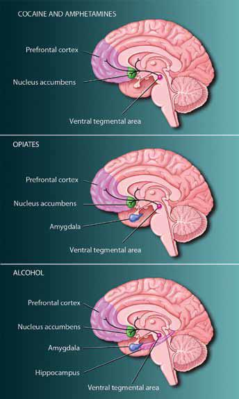 Brain regions affected by different drugs - see text