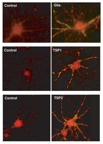 Photo Collage - Proteins Produced by Glial Cells Are Crucial to Development of Synapses