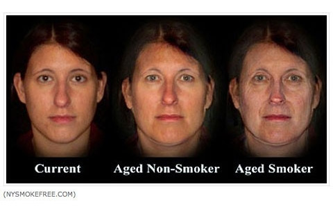 Image showing theoretically aged face after smoking for a few years