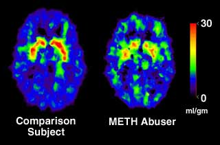 PET Scan of METH abuser compared to comparison subject