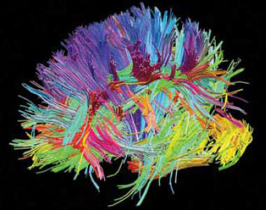 This image shows the many different white-matter fiber tracts as brightly colored lines in the human brain.