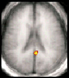 fMRI image showing activation of the posterior cingulate cortex - see caption