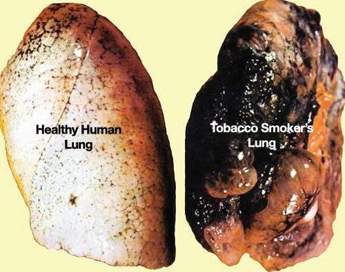 Picture of a health lung and a tobacco smokers blackened lung
