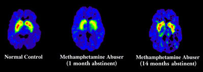 Methamphetamine Brain Scan Images