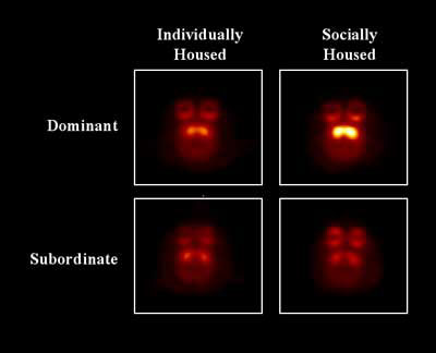 Brain Images of Monkeys Housed Individually and After Transfer to Social Housing