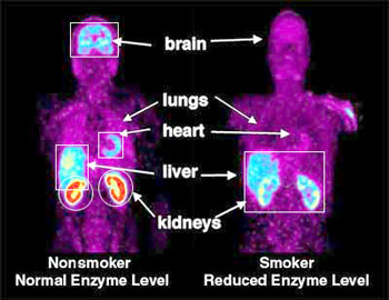 Smoking Decreases Enzyme in Peripheral Organs of Smokers