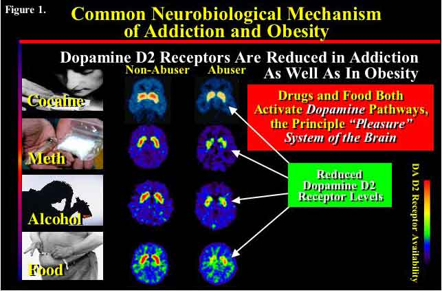 slide showing similar reduction in dopamine levels among drug users and obese individuals - in text