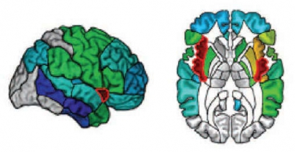 illustration showing damage to the right and left insula of the brain - see caption