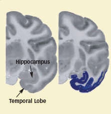 photo of brain tissues showing blue coloring in the temporal lobe representing lower activity after cocaine self-administration