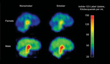 Figure 1 shows four PET tomography images in full color, two for females and two for males. Each pair of images has one PET scan from a nonsmoker and one from a smoker. The scans show the female nonsmoker's brain has more of the radioactive compounds traced by the scans than the female smoker does in hers. The opposite is true of the male smoker, whose PET scan shows less of the compounds than the male nonsmoker's scan. Overall, males have higher levels than females for both smokers and nonsmokers.