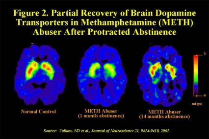 PET scans showing partial recovery of brain dopamine transporters after 1 month and 14 months compared to control