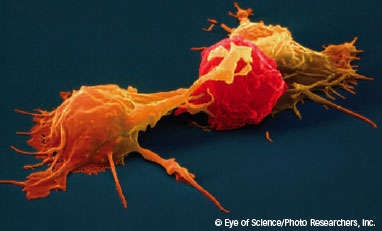 image of natural killer cells attacking a cancer cell