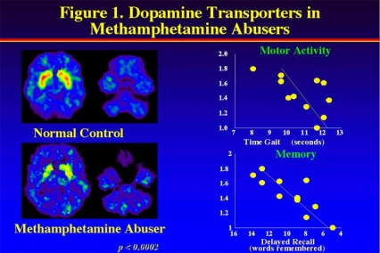PET image showing decreased activity of dopamine transporters in Methamphetamine abusers - in text