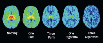PET scans showing nicotine receptor saturation from one puff, three puffs, one cigarette and three cigarettes.