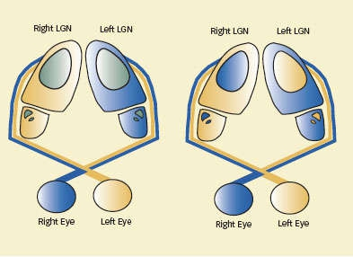 Illustration of connection between eye and lateral geniculate nucleus showing how some section receive input from one eye and some part receive input from both eyes - see caption