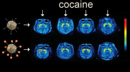 The key experiment used positron emission tomography (PET) to measure the level of DAT occupancy in the brain reward center of four different cocaine-injected animals after immunization with a naked (top) or cocaine analog-loaded (bottom) adenovirus particle.