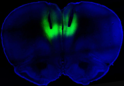 Optogenetic stimulation using laser pulses lights up the prelimbic cortex