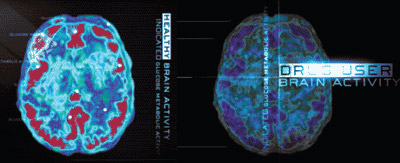 PET images of health brain activity compared to a drug user